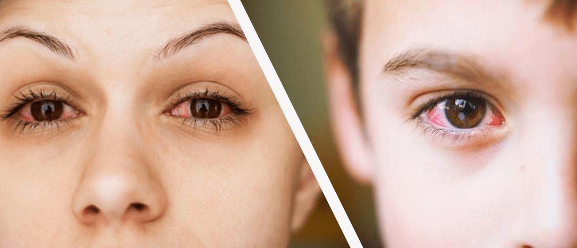 Đỏ mắt là một dấu hiệu thường gặp khi mắt bị khô